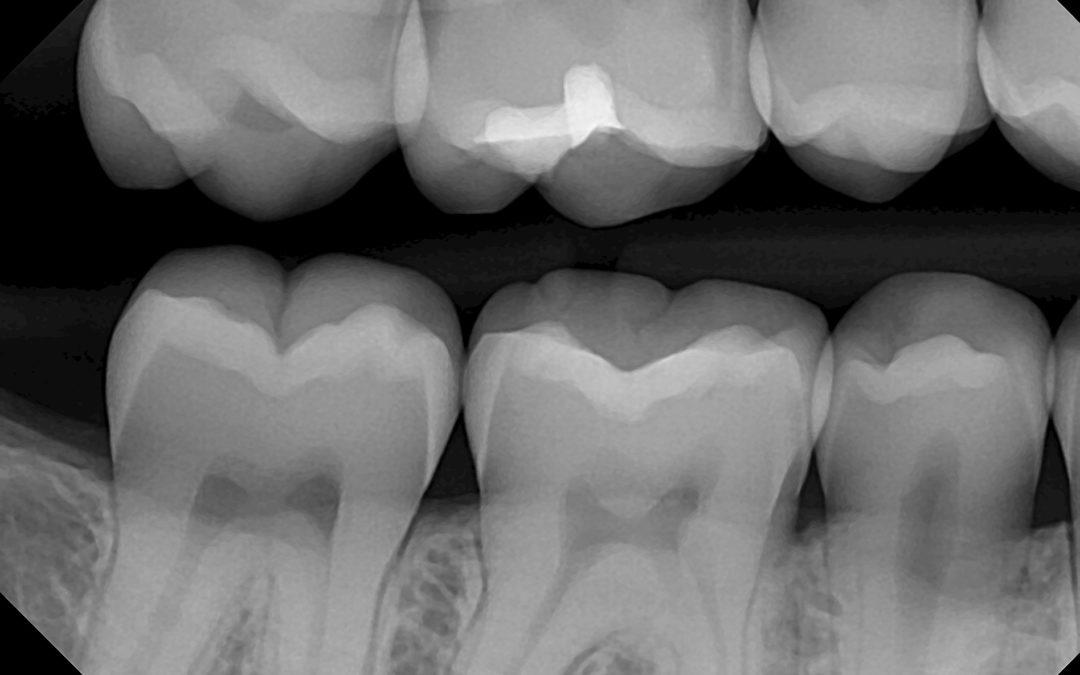 Do I Really Need Dental X-Rays?