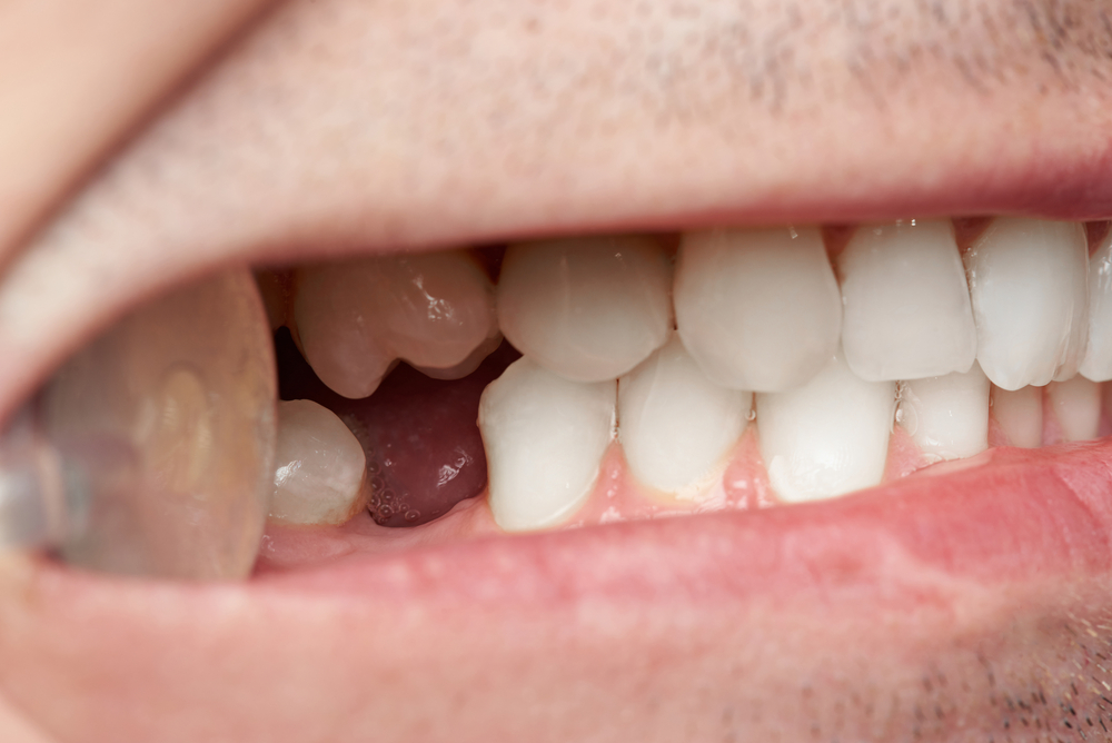 Don't Ignore That Missing Tooth