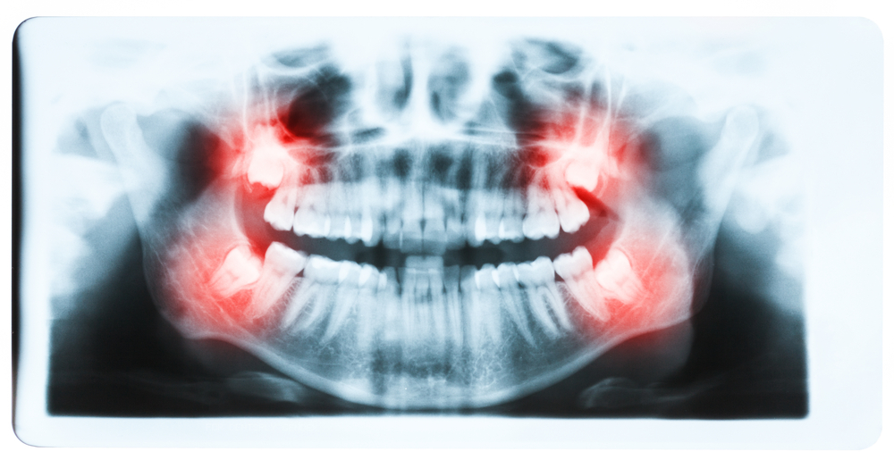 Signs & Symptoms Your Wisdom Teeth Are Coming In